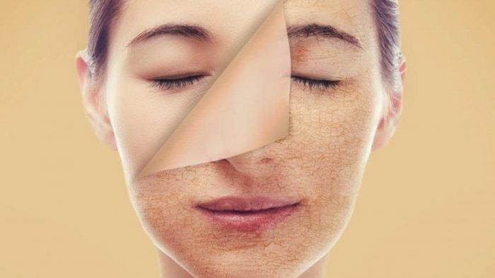 6 Cara Terbaik Mengatasi Kulit Kering di Wajah